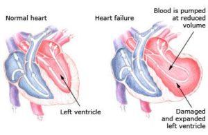 360464-Left-Sided-Heart-Failure